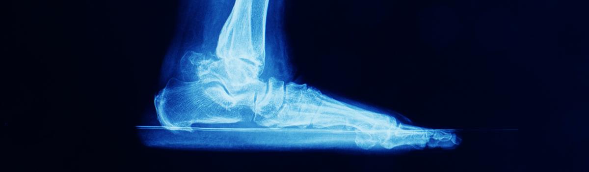Ankle Arthritis | FASO