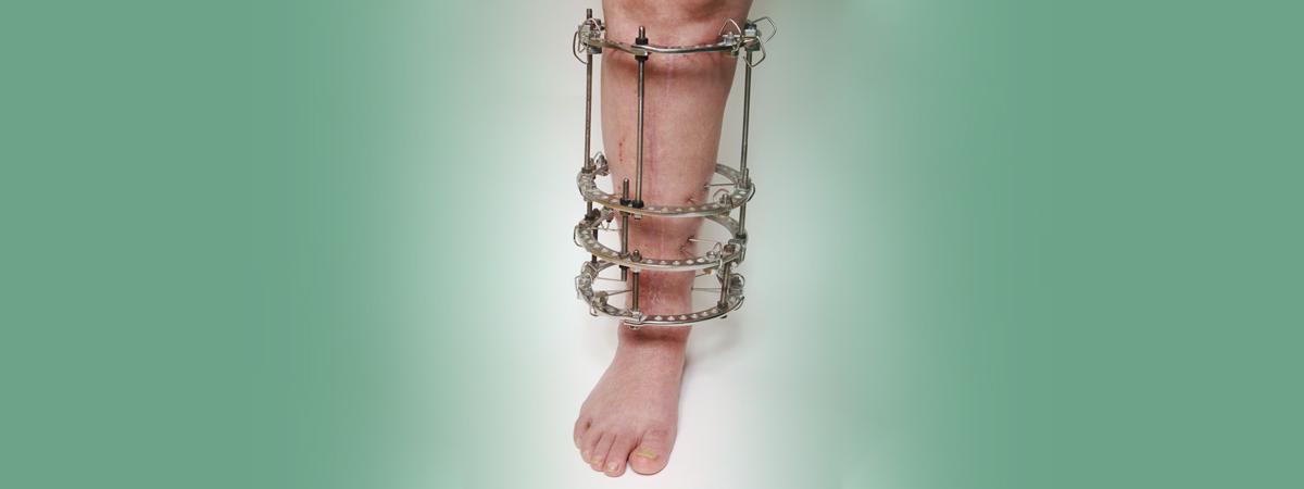 Custom AFO Bracing   Foot & Ankle Surgeons of Oklahoma