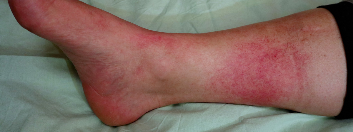 Lower Extremity Infection | FASO