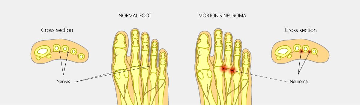Morton's Neuroma | FASO