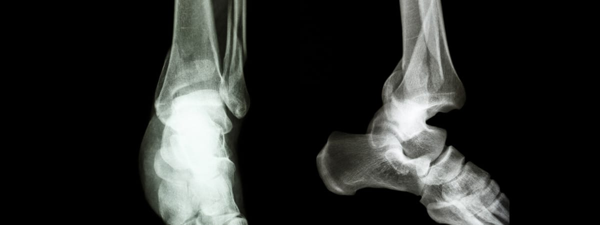 Ankle Fractures   FASO